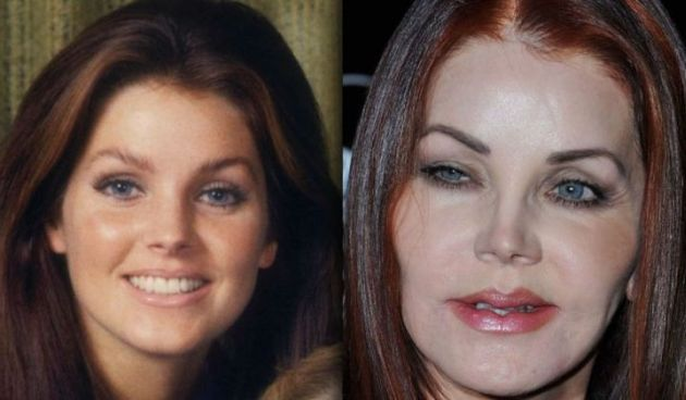 Priscilla Presley Before And After Collagen Lip Injection And Chemical Peel