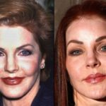 Priscilla Presley Before And After Photos 150x150