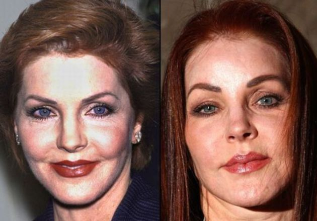 Priscilla Presley Before And After Photos