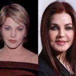 Priscilla Presley Before And After Plastic Surgery 150x150