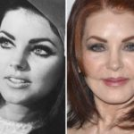 Priscilla Presley Before And After Silicone Injections