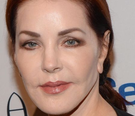 Priscilla Presley Cheek Implants