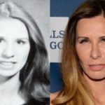 Carole Radziwill plastic surgery Before and After 150x150