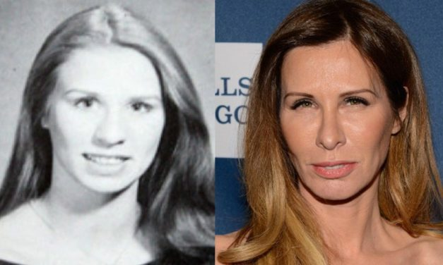 The Secrets of Carole Radziwill Plastic Surgery