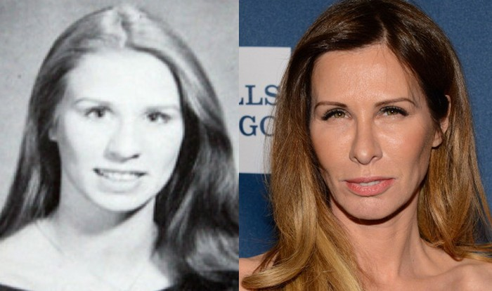 Carole Radziwill plastic surgery Before and After