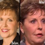 Joyce Meyer before and after nose job and lip implants 150x150