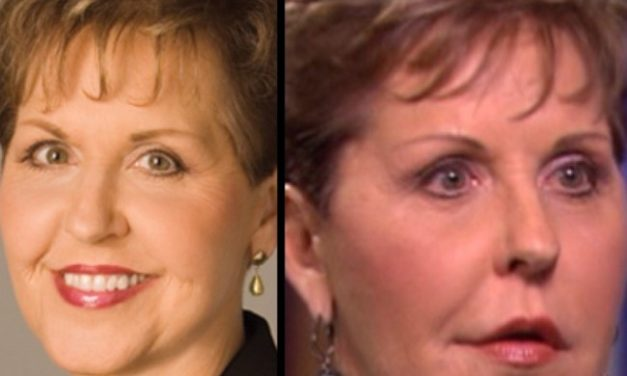 Joyce Meyer Plastic Surgery, Really?