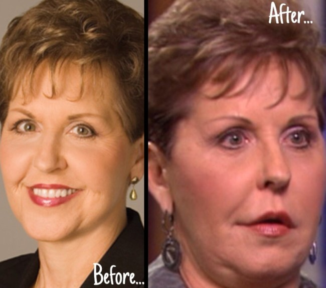 Joyce Meyer before and after nose job and lip implants