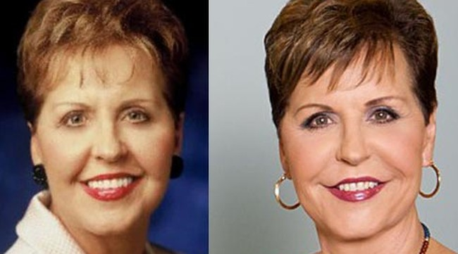 Joyce Meyer before and after