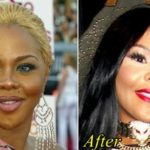 Lil Kim Before and After Plastic Surgery 150x150