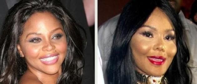 Lil Kim Plastic Surgery Disaster 630x269