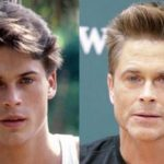 Rob Lowe Plastic Surgery Before and After 150x150