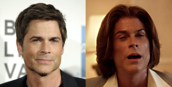 Rob Lowe Plastic Surgery Before and After 2