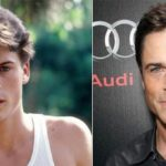 Rob Lowe before and after plastic surgery