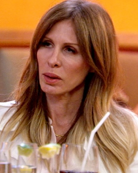 carole radziwill after plastic surgery