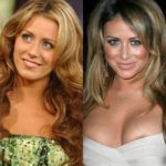 Aubrey O'Day before and after breast implants plastic surgery