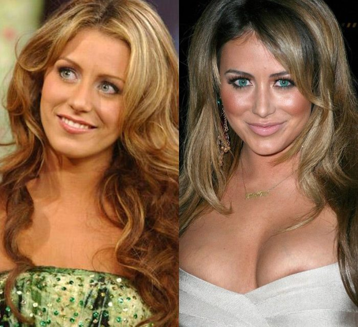 Aubrey O'Day Plastic Surgery: What has she done to her face?