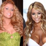 Aubrey O'Day plastic surgery before and after breast implants