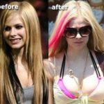 Avril Lavigne Breast Implants Plastic Surgery 150x150