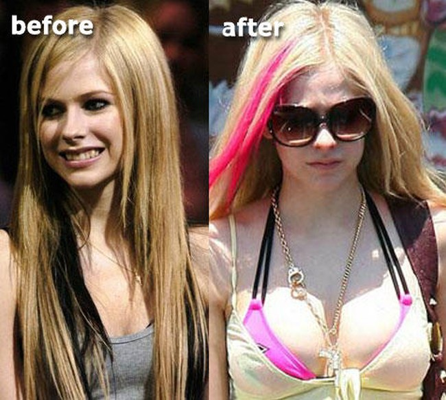 Avril Lavigne Breast Implants Plastic Surgery