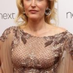 Gillian Anderson after plastic surgery 150x150