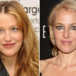 Gillian Anderson before and after nose job 150x150