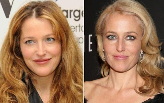 Gillian Anderson before and after nose job 630x399
