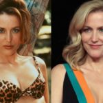 Gillian Anderson before and after plastic surgery 150x150