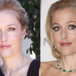 Gillian Anderson plastic surgery 2006 2014 150x150