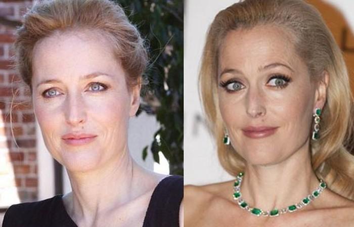 Gillian Anderson plastic surgery 2006 2014
