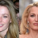 Gillian Anderson plastic surgery before and after 150x150