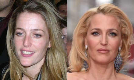Gillian Anderson Plastic Surgery Rumors and Facts
