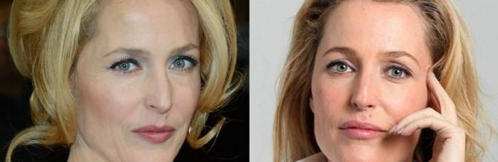 Has Gillian Anderson had nose job