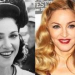 Has Madonna had a nose job plastic surgery 150x150