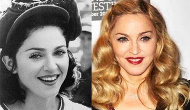 Has Madonna had a nose job plastic surgery