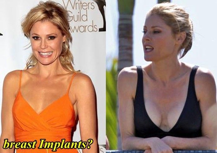 Julie Bowen Plastic Surgery Breast Implants