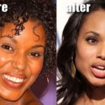 Kerry Washington before and after nose job plastic surgery 150x150