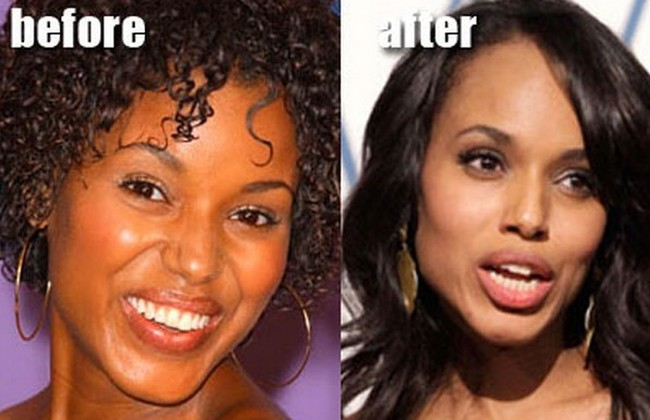 Kerry Washington before and after nose job plastic surgery