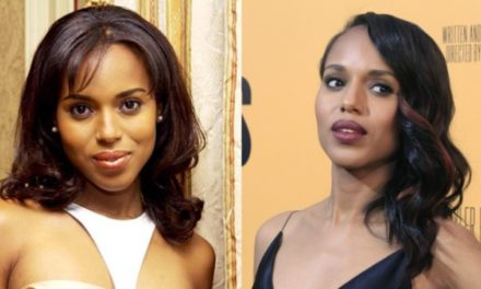 Kerry Washington Plastic Surgery: Was it worth it?