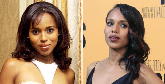 Kerry Washington before and after plastic surgery