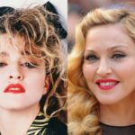 Madonna Before and After Plastic Surgery 150x150