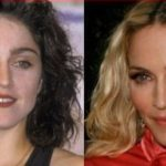 Madonna Plastic Surgery Before and After 150x150