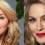 Madonna Plastic Surgery Gone Wrong 2009 2014 150x150