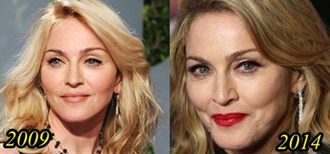 Madonna Plastic Surgery Gone Wrong 2009-2014