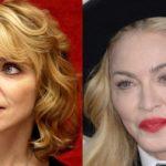 Madonna Plastic Surgery Nightmare