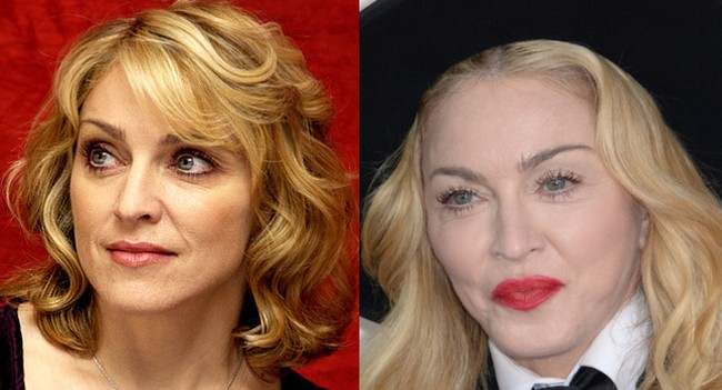 Madonna Plastic Surgery Nightmare