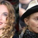 Madonna disaster plastic surgery
