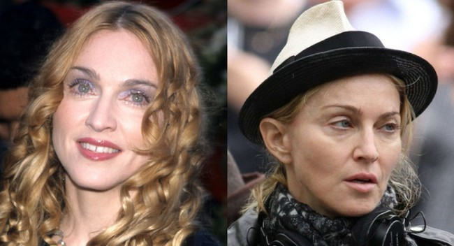 Madonna disaster plastic surgery