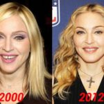 Madonna stay young thanks to plastic surgery 150x150