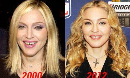 Madonna Plastic Surgery: Good Procedures or Epic Fail?